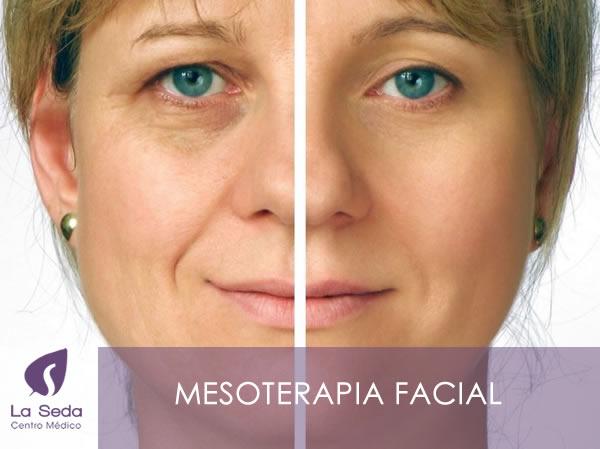 Mesoterapia Facial - La Seda Centro Médico